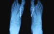 Ακτινολογικό αποτέλεσμα διόρθωσης Hallux-Valgus αμφω ποδών1γ