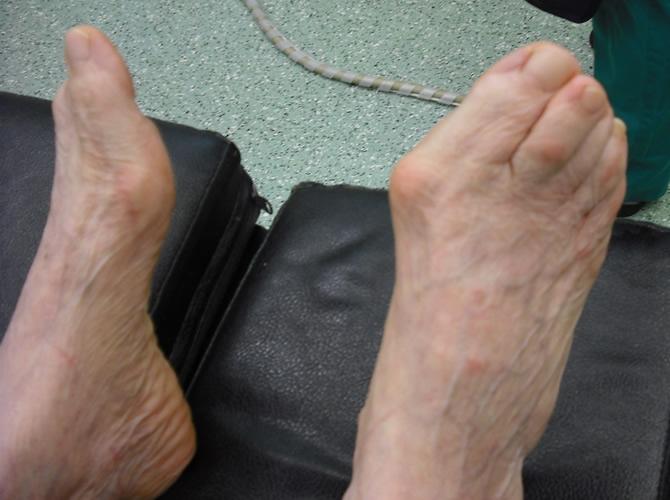 Hallux valgus με αρθρίτιδα σε γυναίκα 70 ετών