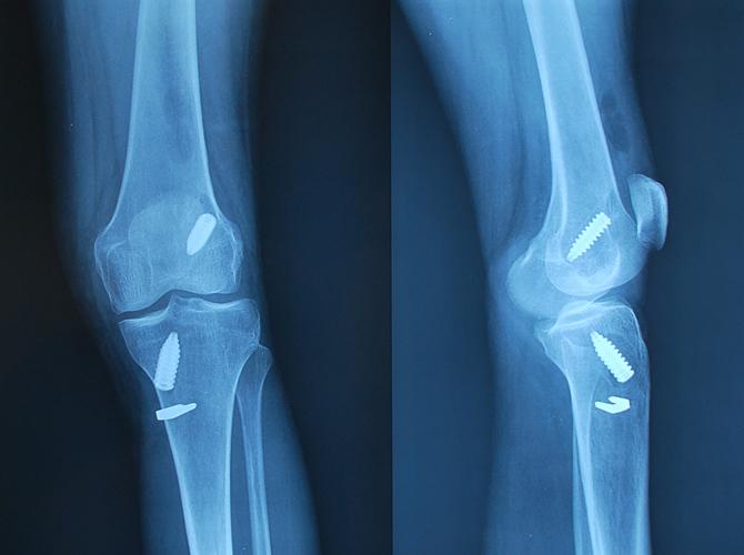 Αντικατάσταση πρόσθιου χιαστού συνδέσμου με τεχνητό μόσχευμα σε γυναίκα 50 ετών με αστάθεια