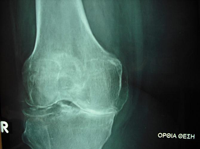 Αρθρίτιδα γόνατος 1α