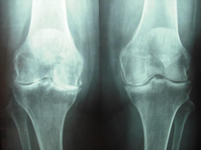 Αρθρίτιδα γόνατος 1β