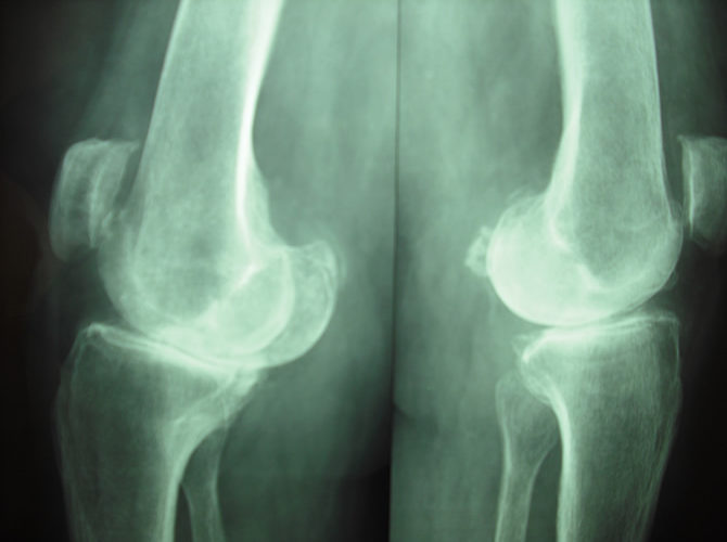 Αρθρίτιδα γόνατος 1γ