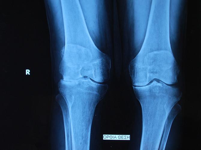 Αρθρίτιδα γόνατος1δ