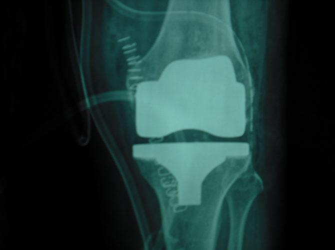 Αρθροπλαστική γόνατος 1