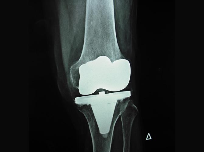 Αρθροπλαστική γόνατος 2