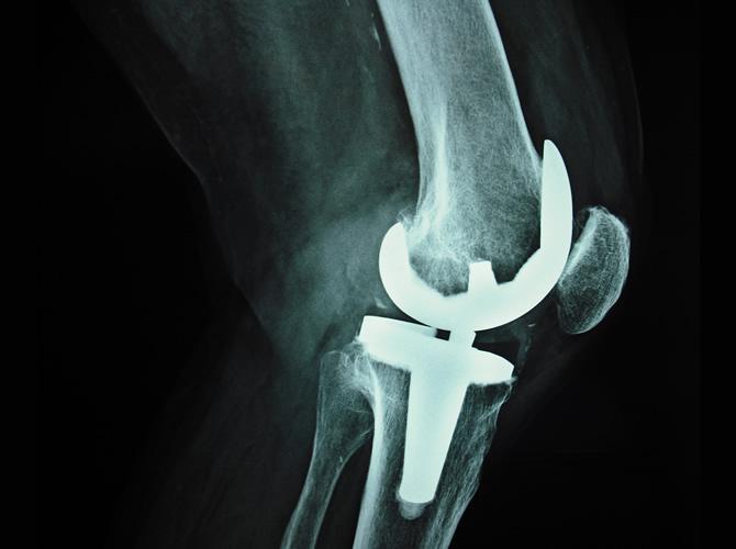 Αρθροπλαστική γόνατος 3