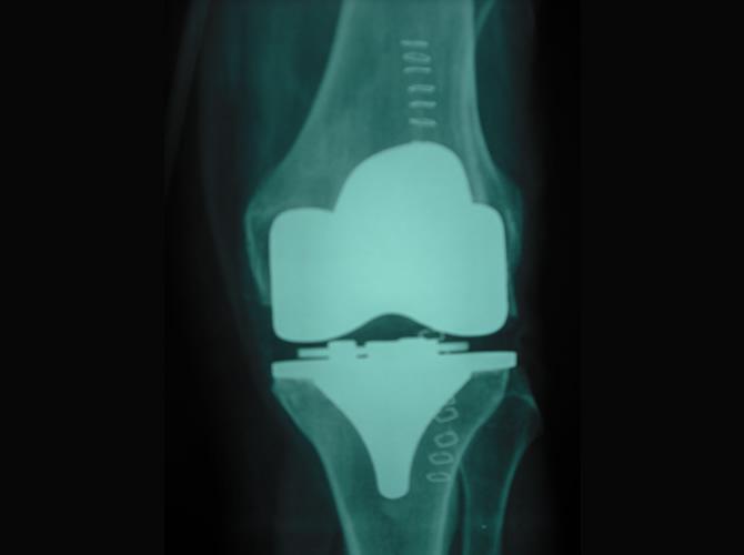 Αρθροπλαστική γόνατος 6