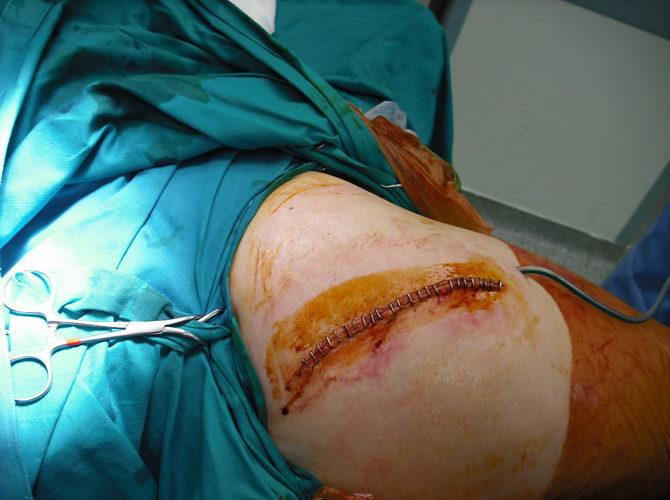 Μικρή τομή για ολική αρθροπλαστική ισχίουβ5