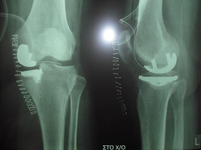 Μονοδιαμερισματική αρθροπλαστική γόνατος 1
