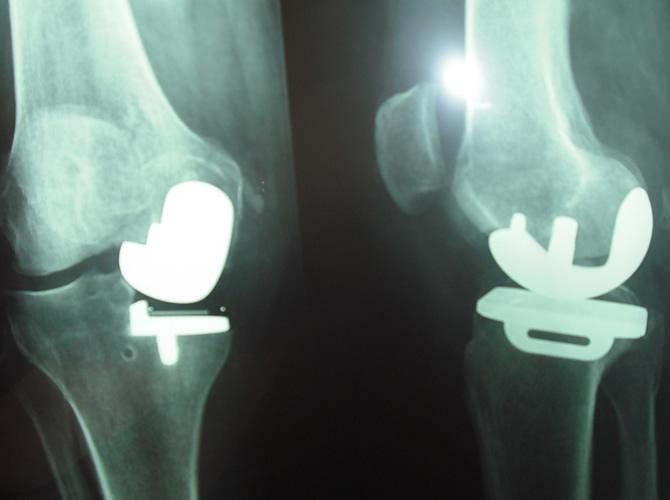 Μονοδιαμερισματική αρθροπλαστική γόνατος 2