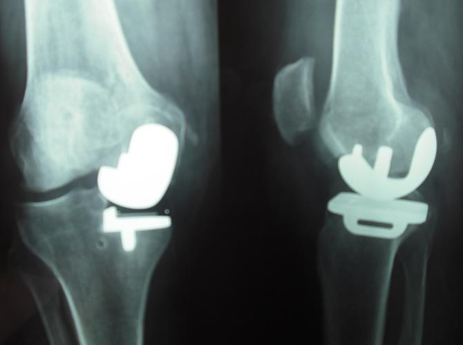 Μονοδιαμερισματική αρθροπλαστική γόνατος 3