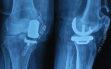 Μονοδιαμερισματική αρθροπλαστική γόνατος 4