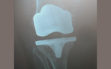 Ολική αρθροπλαστική γόνατος με μικρή τομή 2