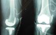 Ολική αρθροπλαστική γόνατος με μικρή τομή 3