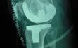 Ολική αρθροπλαστική γόνατος με μικρή τομή 4