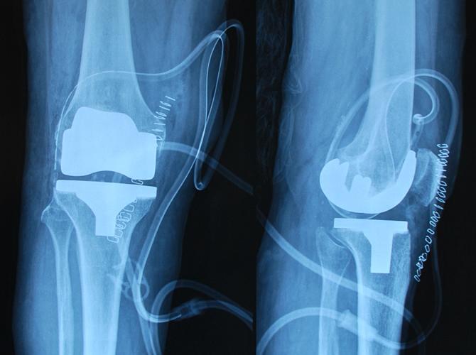 Ολική αρθροπλαστική γόνατος με μικρή τομή 5