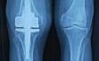 Ολική αρθροπλαστική γόνατος με μικρή τομή 6