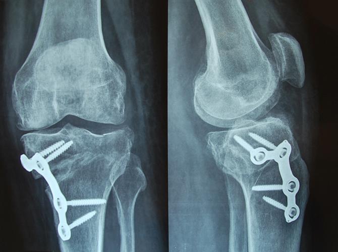 Οστεοτομία κνήμης σε γυναίκα 42 ετων με αρθρίτιδα γόνατος