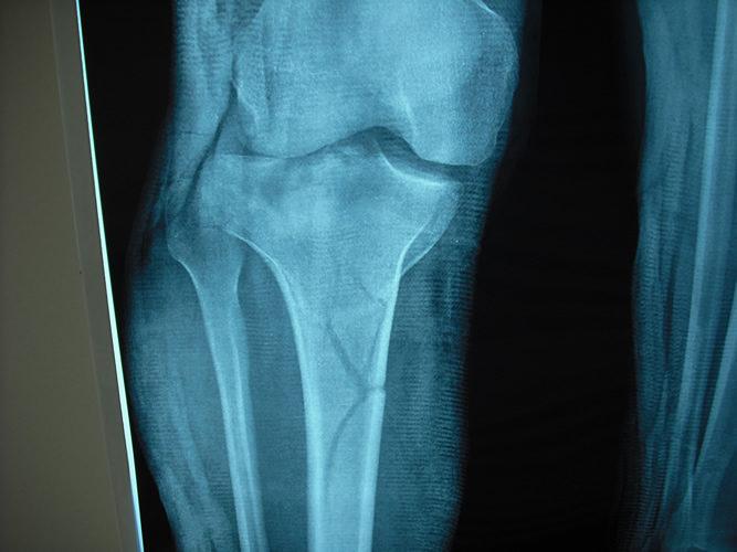Συντριπτικό κάταγμα γόνατος- αντιμετώπιση με Ilizarov1