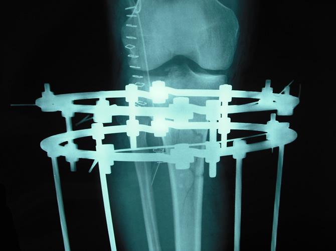 Συντριπτικό κάταγμα γόνατος- αντιμετώπιση με Ilizarov2