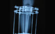 Συντριπτικό κάταγμα γόνατος- αντιμετώπιση με Ilizarov3