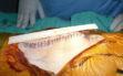 Χειρουργείο αρθροπλαστικής γόνατος δ