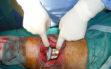 Χειρουργείο αρθροπλαστικής γόνατος ε