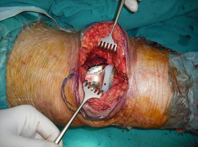Χειρουργείο αρθροπλαστικής γόνατος ζ